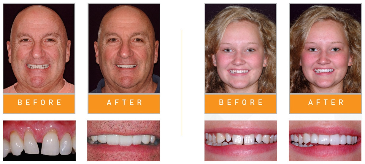 bioclear dentist texas