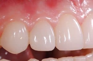 Bioclear for Reshaping Undersized Teeth