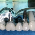 Dental Implants in Waxahachie, Texas