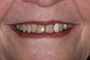 Bioclear Dentist Waxahachie Texas