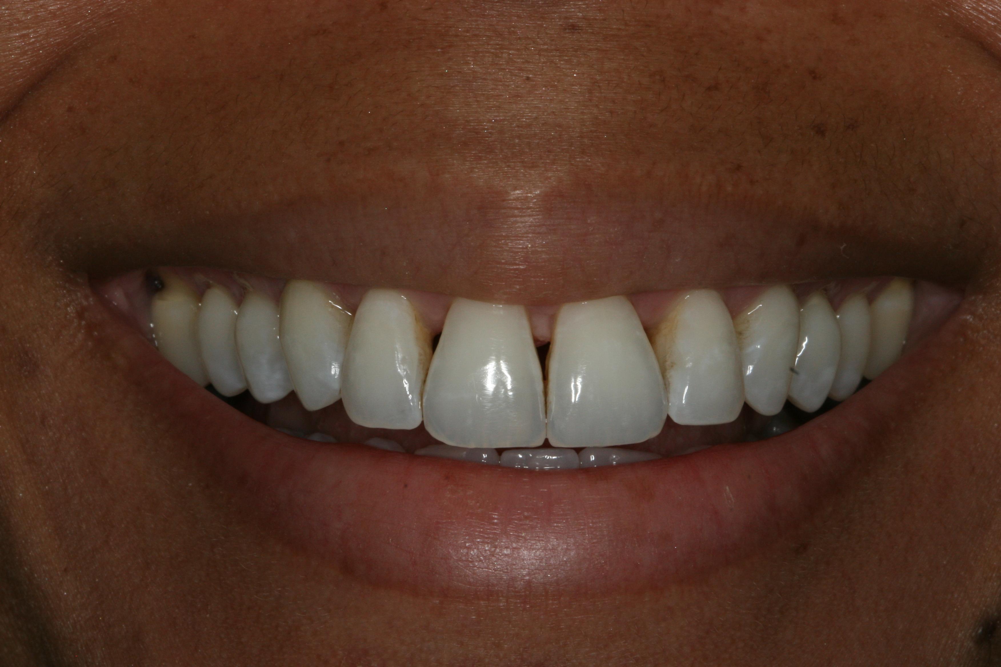 Smile before Bioclear: black triangle teeth