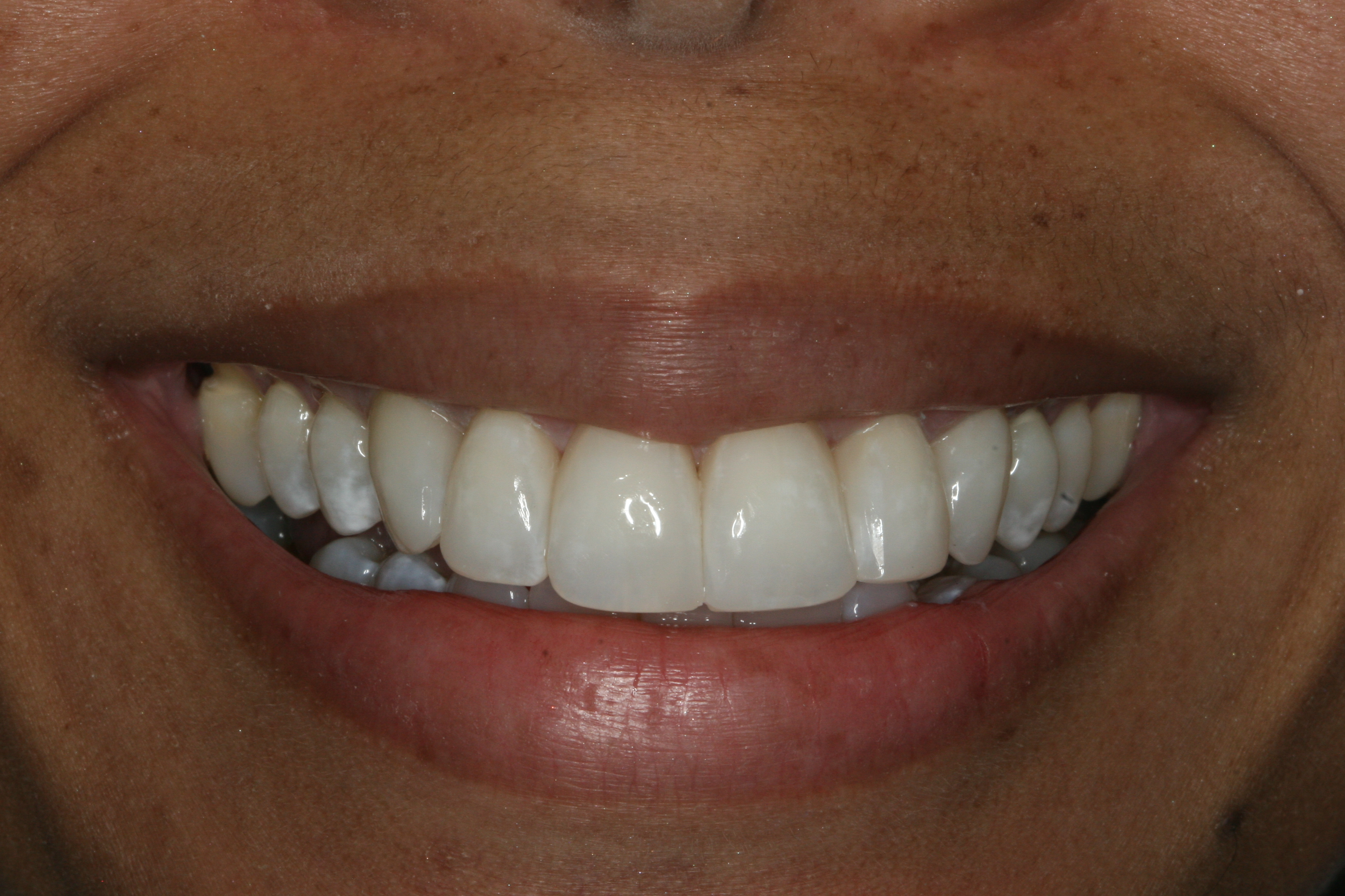 Smile after Bioclear: no black triangles between teeth
