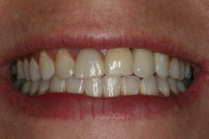 A full smile after dental implant