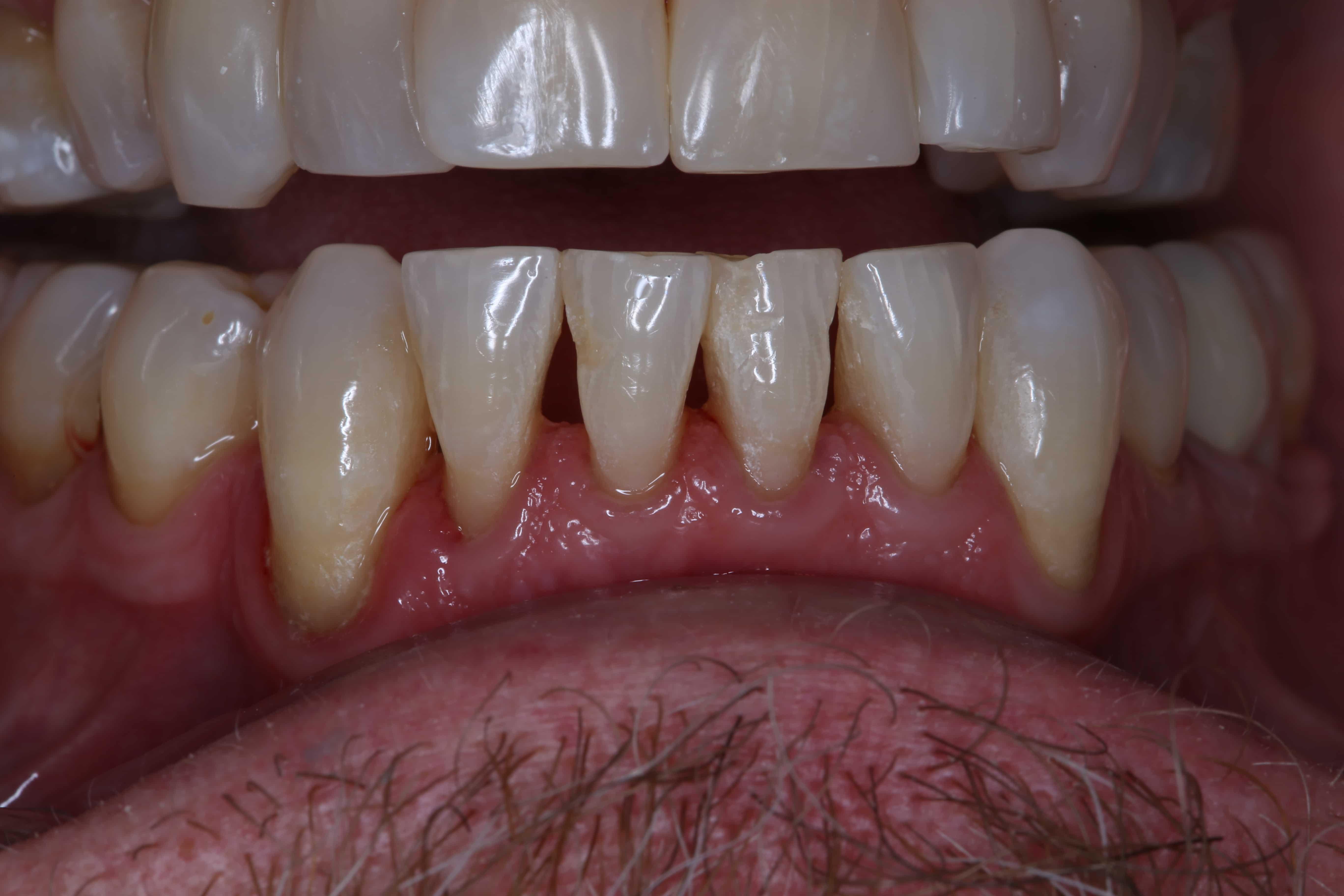 Smile before Bioclear: black triangles between teeth