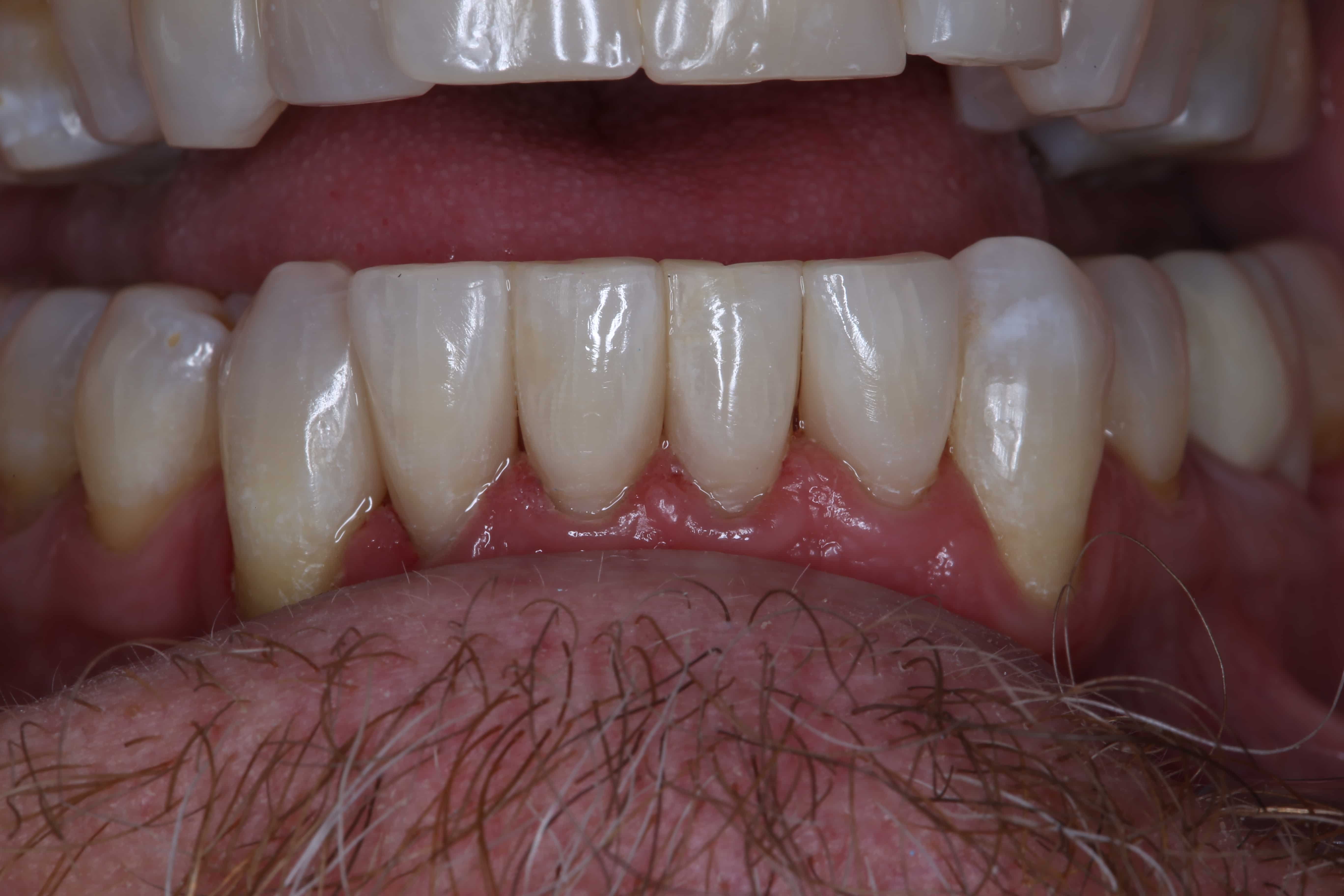 Fixing Black Triangles Between Teeth With Bioclear Craig V Smith Dds Fagd