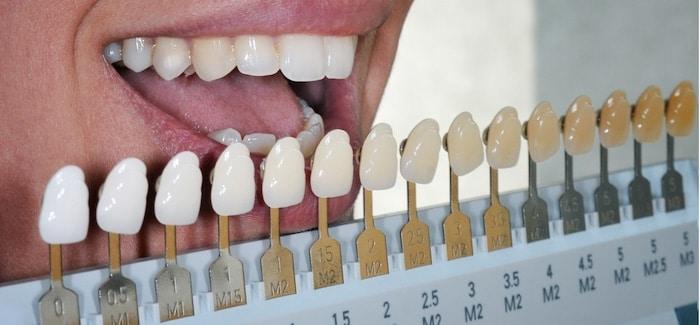 professional teeth whitening Waxahachie