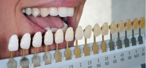 Teeth Whitening Services in Waxahachie