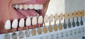 Teeth Bleaching Dentist in Waxahachie